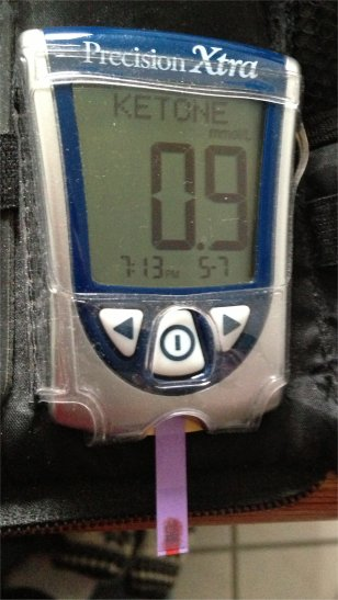 Checking Blood Sugar and Serum Ketones