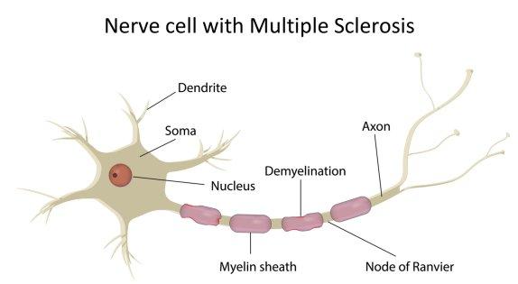 Multiple Sclerosis Treatment: Ketones are Better